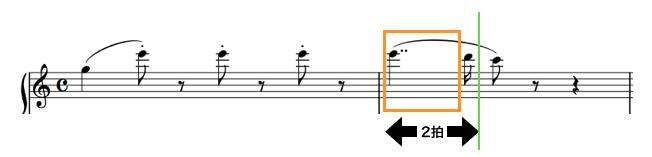 チェルニー30番練習曲<2番>複付点